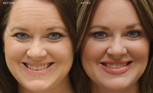 The Truth About Botox The Medspa At Eye Q