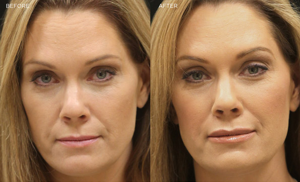 Hyaluronic Acid Before After Hyaluronic Acid Fillers The